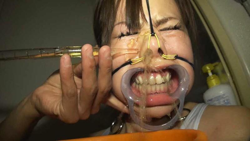 【鬼畜】開口器で広げらたままザーメンや尿を流し込まれてる上級者向けのSM画像集・22枚目