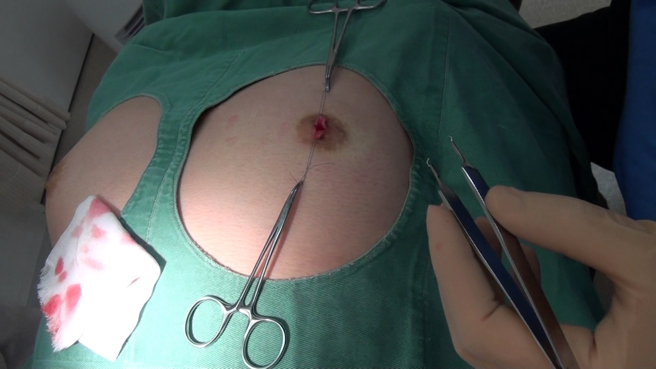 美容整形手術中の画像をSNSにうpされた闇が深いエロ画像まとめ。(21枚)・19枚目